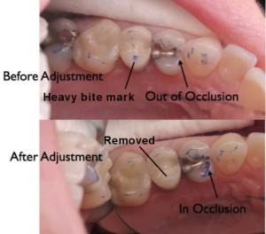 Dissertation dental occlusion