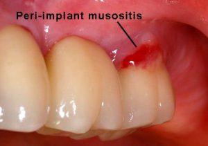 Peri-implant mucositis